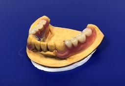 ノンクラスプ金属床義歯